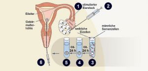 In vitro Fertilisation (IVF) Bayreuth